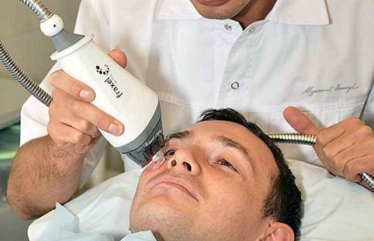 что такое лазерная эпиляция бороды у мужчин