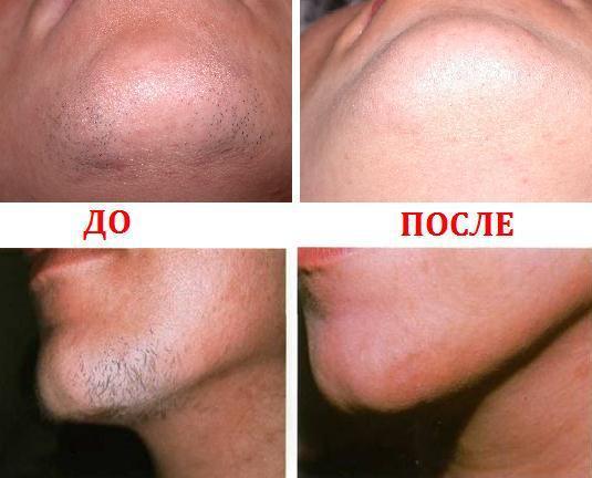 лазерная эпиляция бороды у мужчин до и после