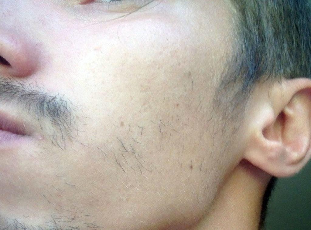 плохо растет борода на щеках