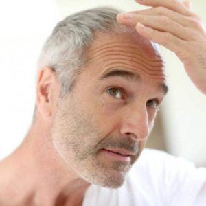 прическа для лысеющего мужчины