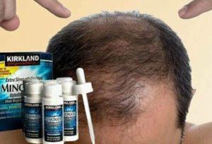 на голове появилось лысое пятно у мужчин лекарства от облысения