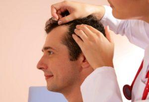 на голове появилось лысое пятно у мужчин диагностика