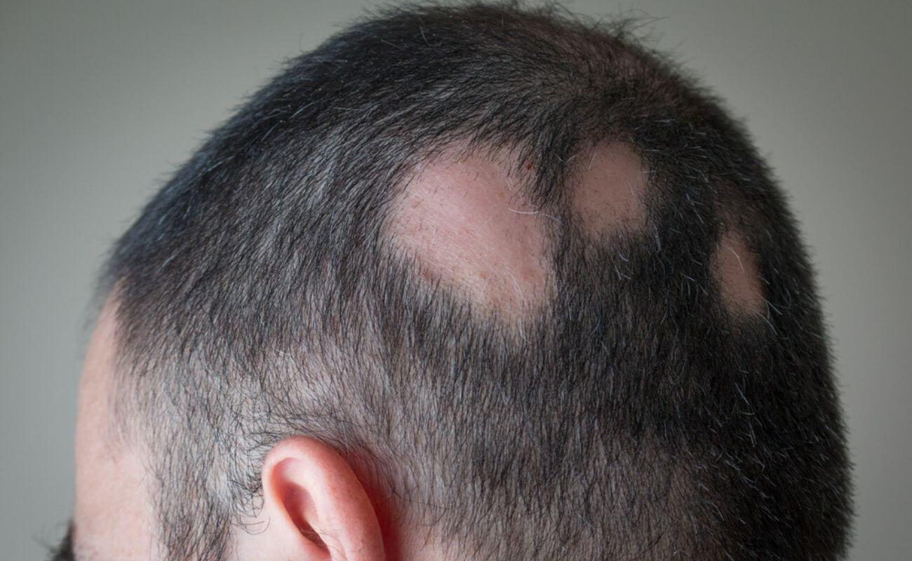 Коприва за косу припрема
