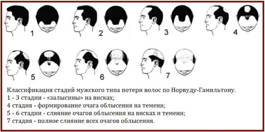 выпадают волосы у мужчин стадии