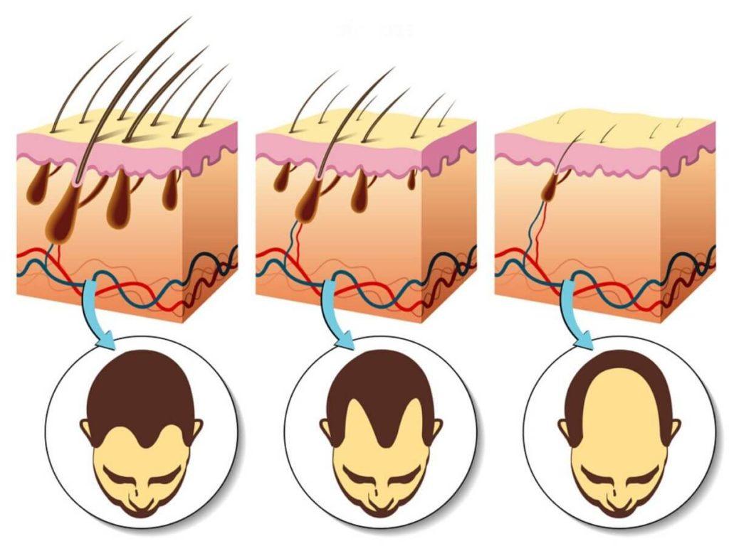 стадии выпадения волос