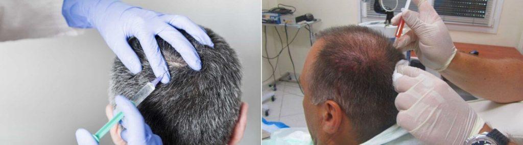 косметологические процедуры как средство от седины для мужчин
