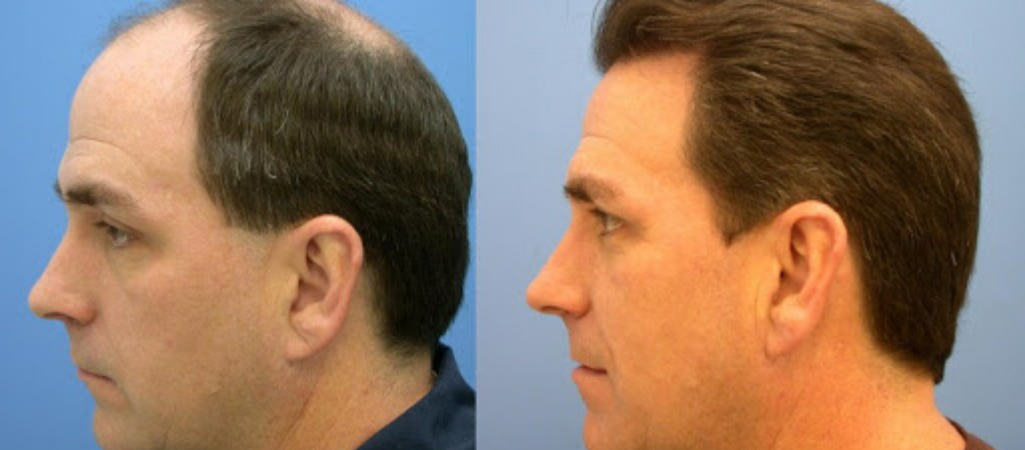Мужчина до и после пересадки волос на голове