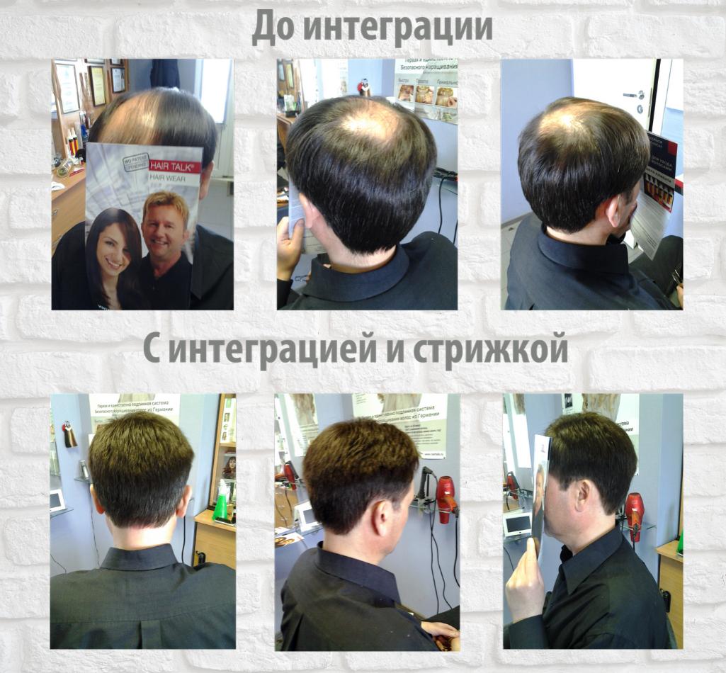 Фото до интеграции системы волос и после