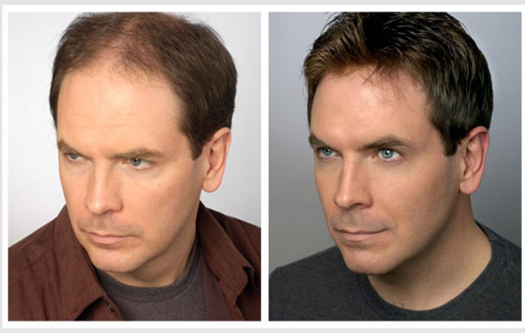 Фото до использования системы волос и после