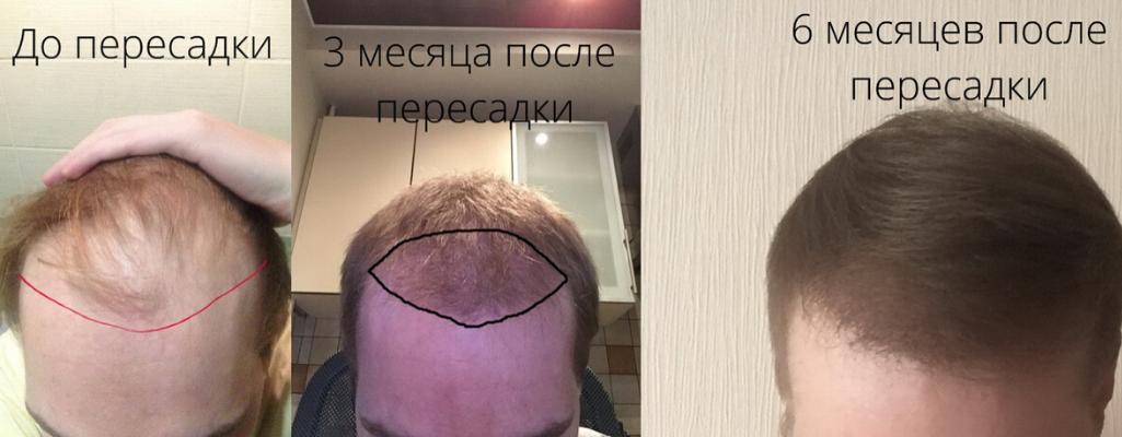 Рост волос после трансплантации