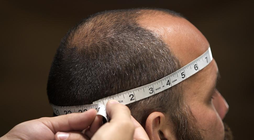 Измерение обхвата головы